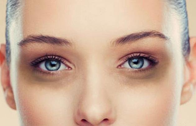göz altı morluklarına çözüm